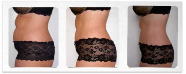 liposuccion con laser